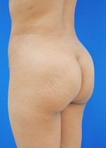 Buttock Shaping