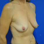 Combination Breast Lift / Augmentation