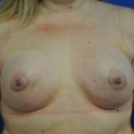 Complex Primary Breast Augmentation